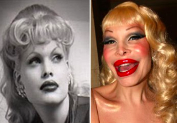 13 Celebrities Unrecognisable After Surgery Thewonderlist